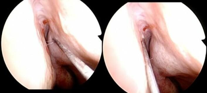 <em>Injeksjon med Avastin i neseslimhinnen, venstre nesehule. Foto: OUS.</em>