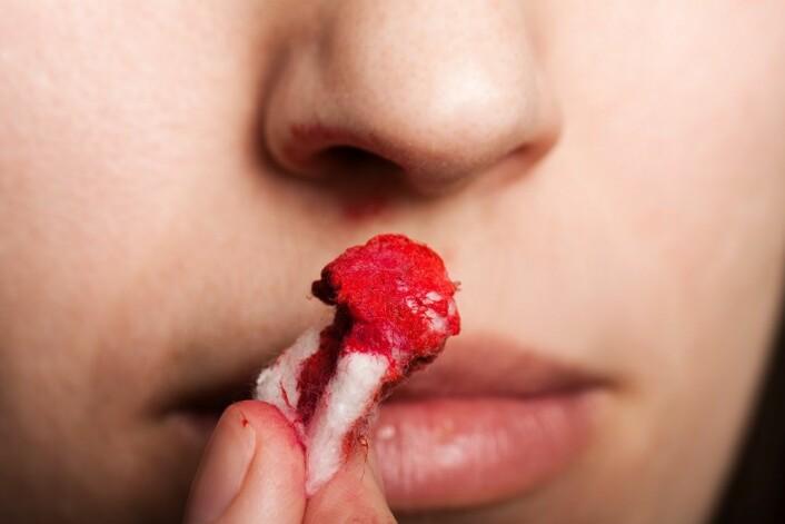 Morbus Osler er en sykdom som gir symptomer som plagsomme og hyppige neseblødninger. Med injeksjon av kreftmedisin kan flere Osler pasienter nå få hjelp. (Illustrasjonsfoto: Colourbox)