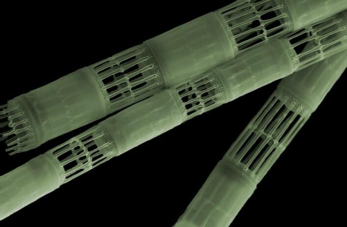Planteplanktonet Skeletonema costatum. (Foto: Stig Bjarte Haugen, Havforskningsinstituttet)