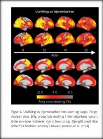 Utvikling av hjernebarken hos barn og unge. Fargeskalaen viser årlig prosentvis endring i hjernebarkens volum. Gule områder viser størst forandring. Faksimile fra «13 prinsipper for behandling av ruslidelser hos unge» NIDA/ Nasjonal kompetansetjeneste TSB. (Foto: Oslo Universitetssykehus)