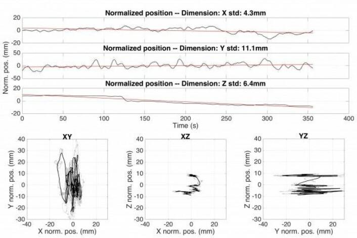"""Grafer som viser bevegelsene til en person som står stille i 6 minutter. De tre øverste grafene viser bevegelsene sideveis (X), frem-tilbake (Y) og opp-ned (Z). Legg merke til hvordan personen """"synker"""" litt sammen over tid. De tre nederste grafene viser hvordan de tre aksene varierer i forhold til herandre. XY-grafen viser et fugleperspektiv, med forsøkspersonens nese pekende oppover. Her kan man tydelig se at mesteparten av bevegelsen kommer fra svaiing frem og tilbake."""