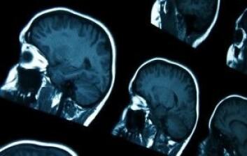 Sykdommer som Alzheimers synes på MRI-bilder av hjernen. (Foto: Colourbox)