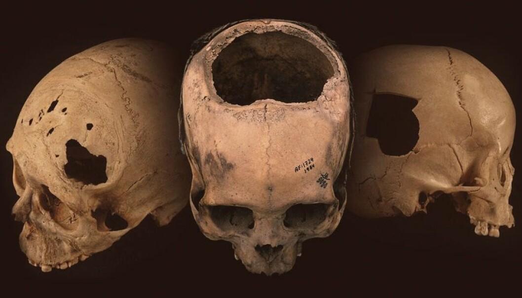 Eldgamle hodeskaller funnet i Peru har hull etter operasjoner. (Foto: University of Miami)