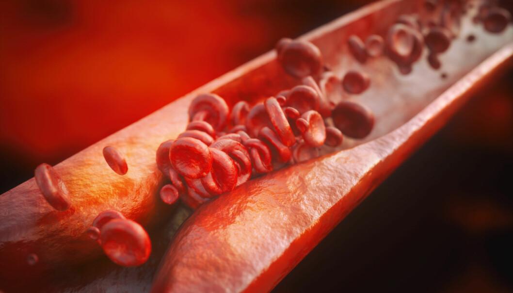 Åreforkalkning er årsak til vanlige hjerte- og karsykdommer som slag og hjerteinfarkt. Flere faktorer øker risikoen for åreforkalkning, for eksempel diabetes, høyt blodtrykk, fedme, røyking og høye verdier av kolesterol og triglyserider. Kanskje burde visse tarmbakterier være med på denne lista?  (Illustrasjon: Crevis / Shutterstock / NTB scanpix)