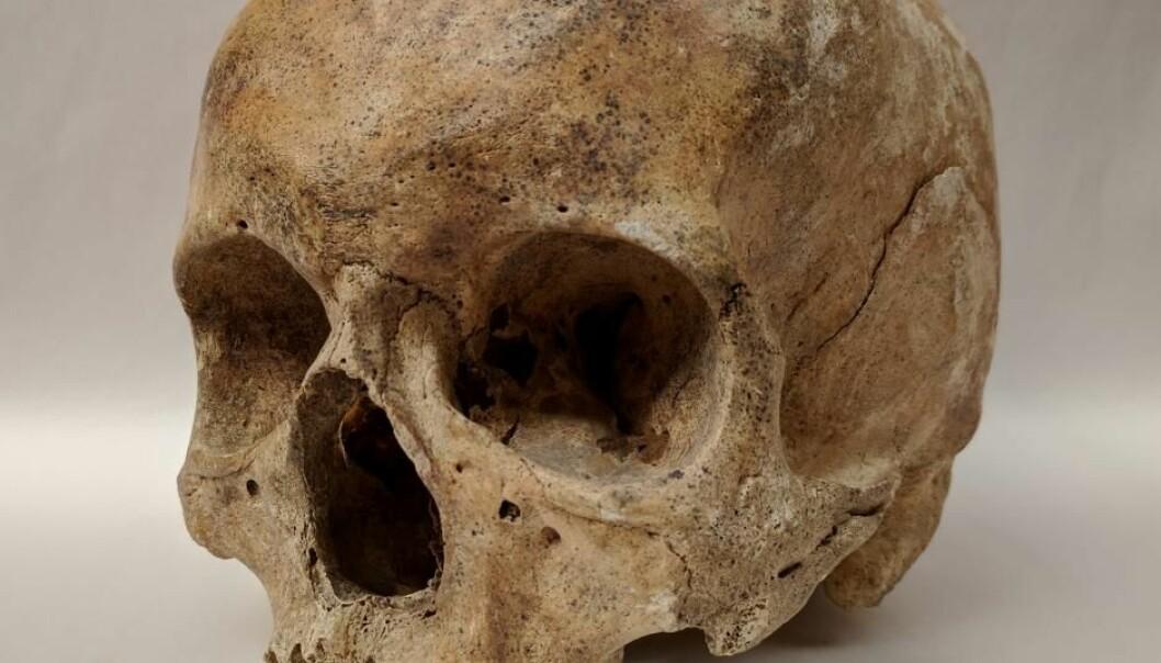Skjelett fra et spedalskhetssykehus i Odense i Danmark har blitt undersøkt i en ny studie. Selv om de ble begravet for mer enn 700 år siden, kan forskerne fortsatt finne spor etter spedalskhetsbakterier på de gamle knoklene  (Foto: Dorthe Pedersen)