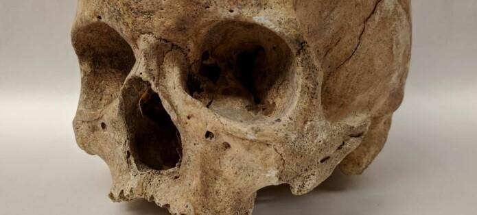 Skjeletter fra middelalderen gjemmer på bakterier fra makaber sykdom