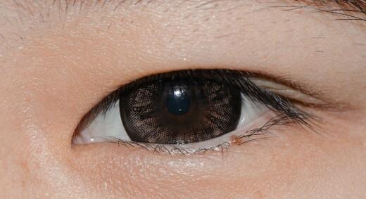 Blir du blind hvis linsen i øyet løsner?