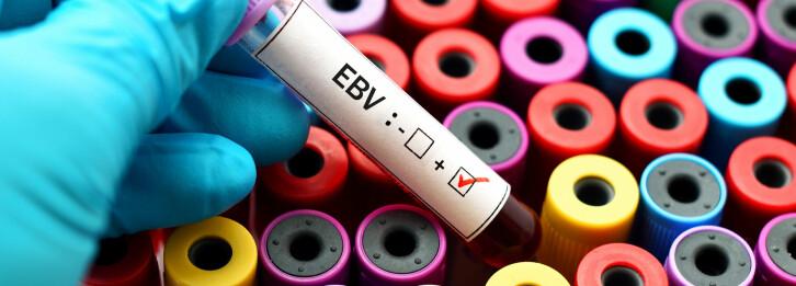 Kyssesykevirus involvert i sju autoimmune sykdommer