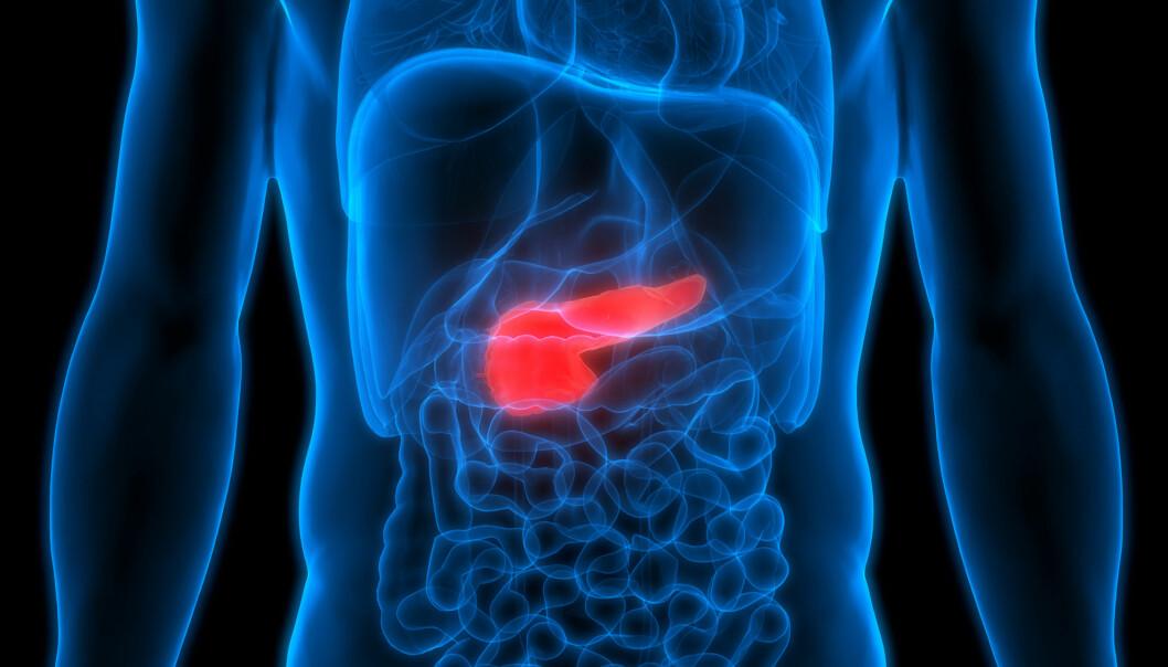 En behandling som målstyrer et radioaktive legemiddelet direkte til svulsten, vurderes innført i Norge. Det kan brukes mot blant annet kreft i bukspyttkjertelen.  (Foto: Shutterstock)