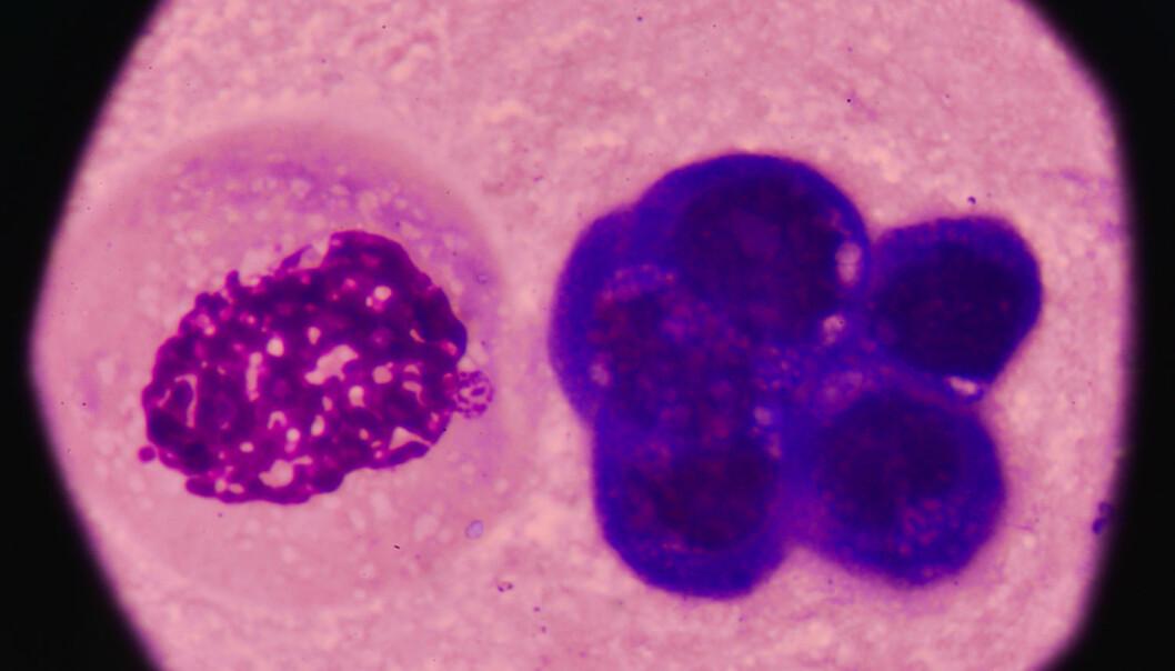 Nå vet forskere hva som skjer i kroppen når brystkreft begynner å spre seg.  (Foto: toeytoey / Shutterstock / NTB scanpix)