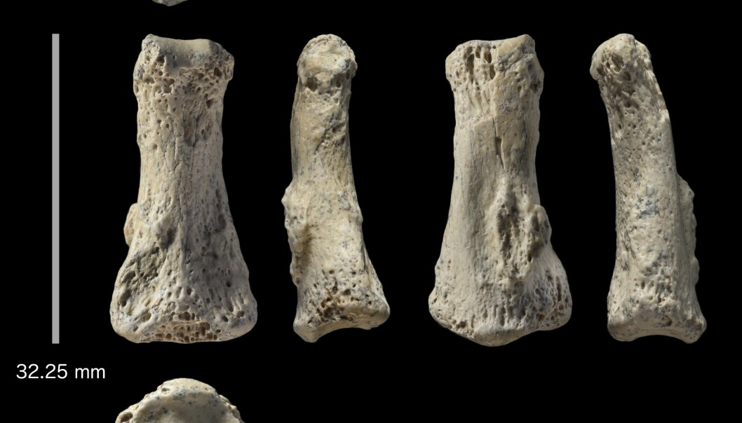 Fingerknokkelen fra forskjellige sider. Det er et av fingerleddene som er funnet.  (Foto:  Ian Cartwright)