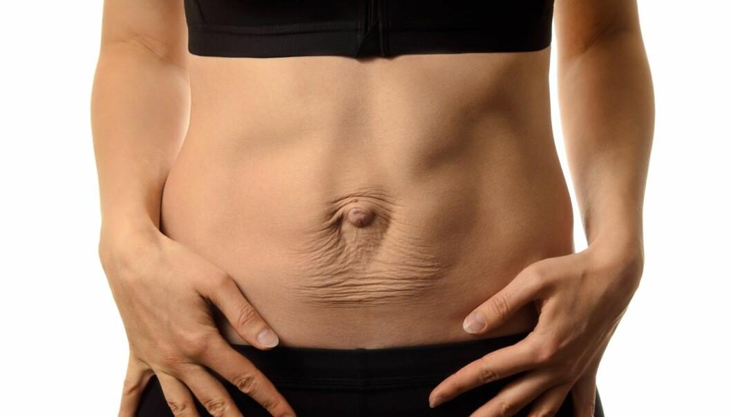 Rectus diastase, eller skilte magemuskler, er noe mange damer får etter fødselen. For de fleste trekker de seg sammen igjen, men noen for en vedvarende åpning som på dette bildet. Eksperter har lenge anbefalt en type trening som behandling, men forskere ved Norges idrettshøgskole har nå en studie som tyder på at den ikke virker likevel. Men vi er nødt til å spørre oss om det egentlig er så farlig å ha et slikt mellomrom, mener professor ved NIH, Kari Bø.  (Foto: Tetiana Mandziuk / Shutterstock / NTB scanpix)