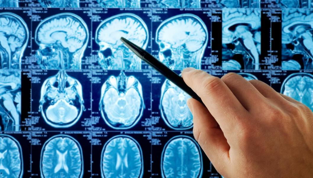 Behandlingen, som forskere nå har testet ut på mennesker, går ut på å injisere en modifisert variant av polioviruset direkte inn i hjernesvulsten på syke pasienter. (Illustrasjonsfoto: Triff, Shutterstock, NTB scanpix)