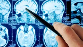 Gjennombrudd for norske hjernekreftforskere
