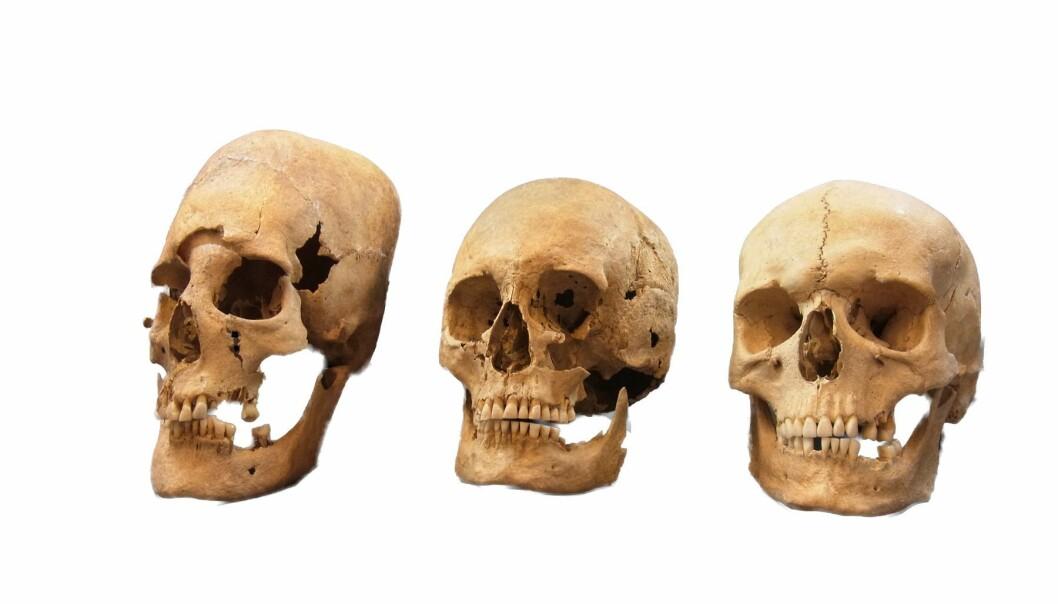 Dette bildet viser en sterkt deformert hodeskalle (til venstre), en middels deformert hodeskalle (i midten) og en normal hodeskalle (til høyre). Genmaterialet fra de langpannede hodeskallene ser ut til å bevise kvinnelig migrasjon over store distanser på et tidspunkt hvor man har tenkt at dette først og fremst var forbeholdt menn. (Foto: State Collection for Anthropology and Palaeoanatomy Munich)