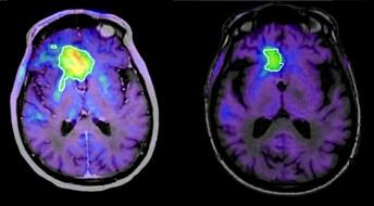 Kan uhelbredelig hjernekreft bekjempes med immunterapi?