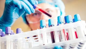 Ny forskning definerer diabetes 1, 2, 3, 4 og 5