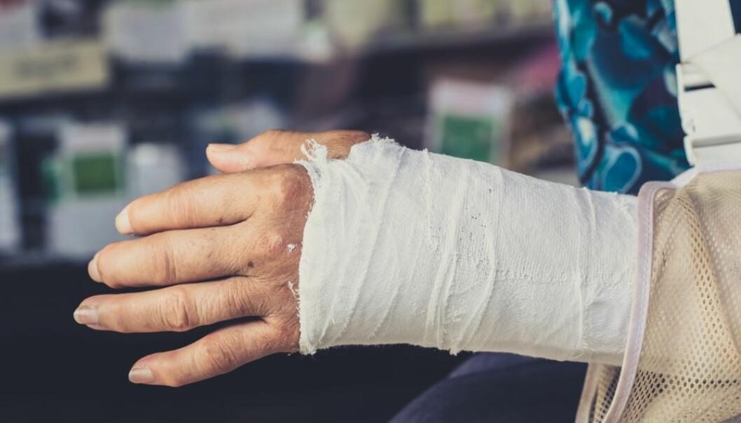 Håndleddsbrudd hos godt voksne og eldre er ofte et resultat av beinskjørhet. En studie ved Universitetet i Bergen viste at 64 prosent av kvinnelige og 49 prosent av mannlige pasienter med håndleddsbrudd hadde behandlingstrengende osteoporose. (Foto: Colourbox)