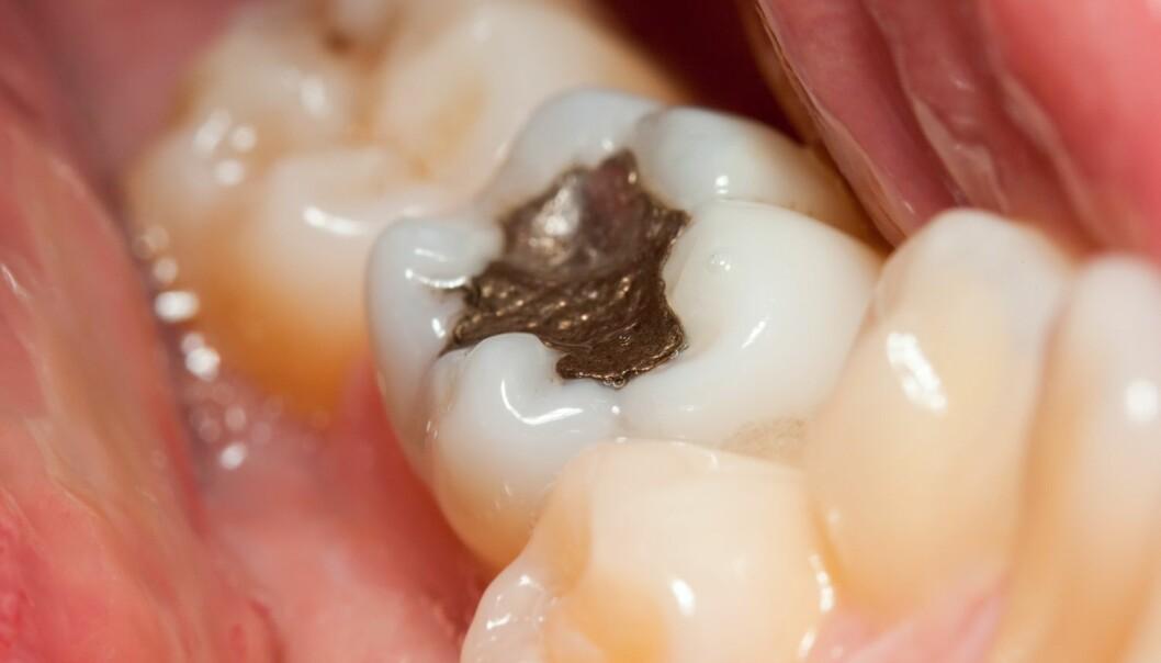 Amalgam har vært brukt av tannleger i hvert fall siden tidlig på 1800-tallet. Diskusjonen om hvorvidt kvikksølvmaterialet er farlig for pasienten, er nesten like gammel. (Illustrasjonsfoto: Szasz-Fabian Jozsef, Shutterstock/NTB scanpix)
