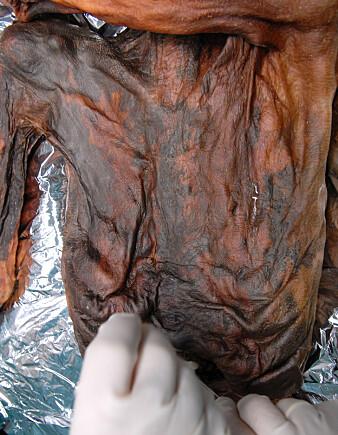 Magesekken til Ötzi er godt bevart. (Foto: Southtyrolarchaeologymuseum\ Eurac\M.Samadelli)