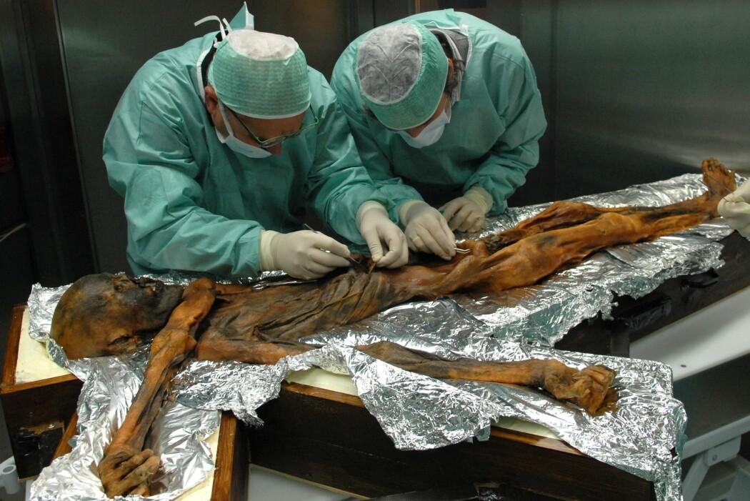 Hva spiste Ötzi? Forskere leter forsiktig etter matrester i magen til ismannen. (Foto: Southtyrolarchaeologymuseum\Eurac\M.Samadelli)