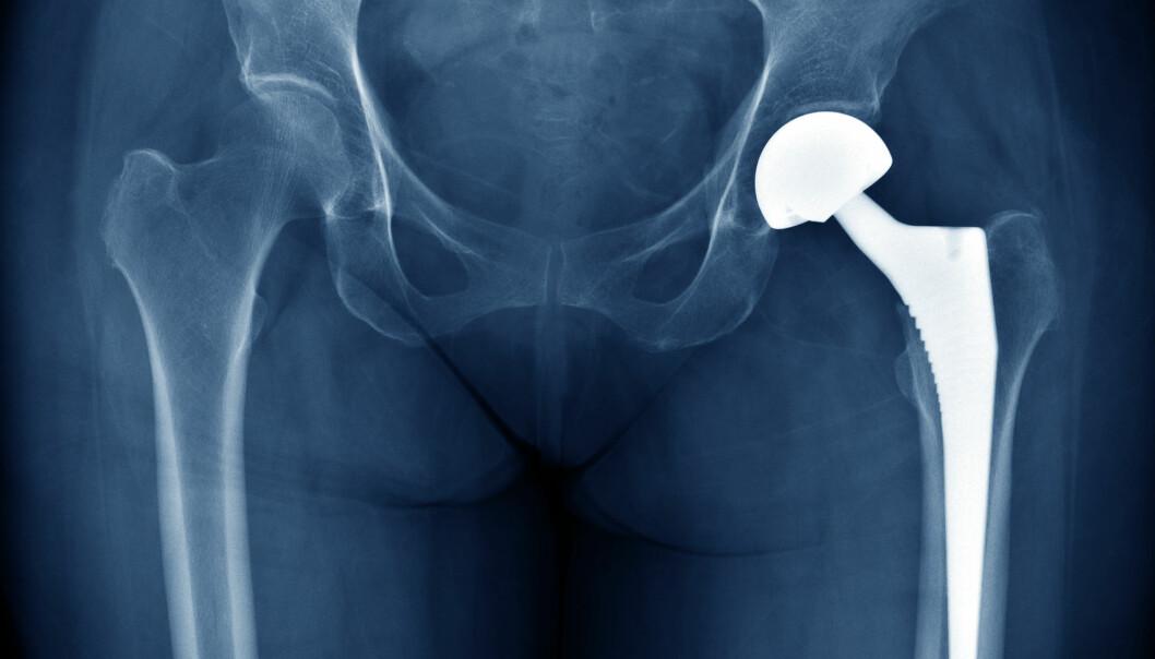 Implantater er fulle av bakterier og sopp