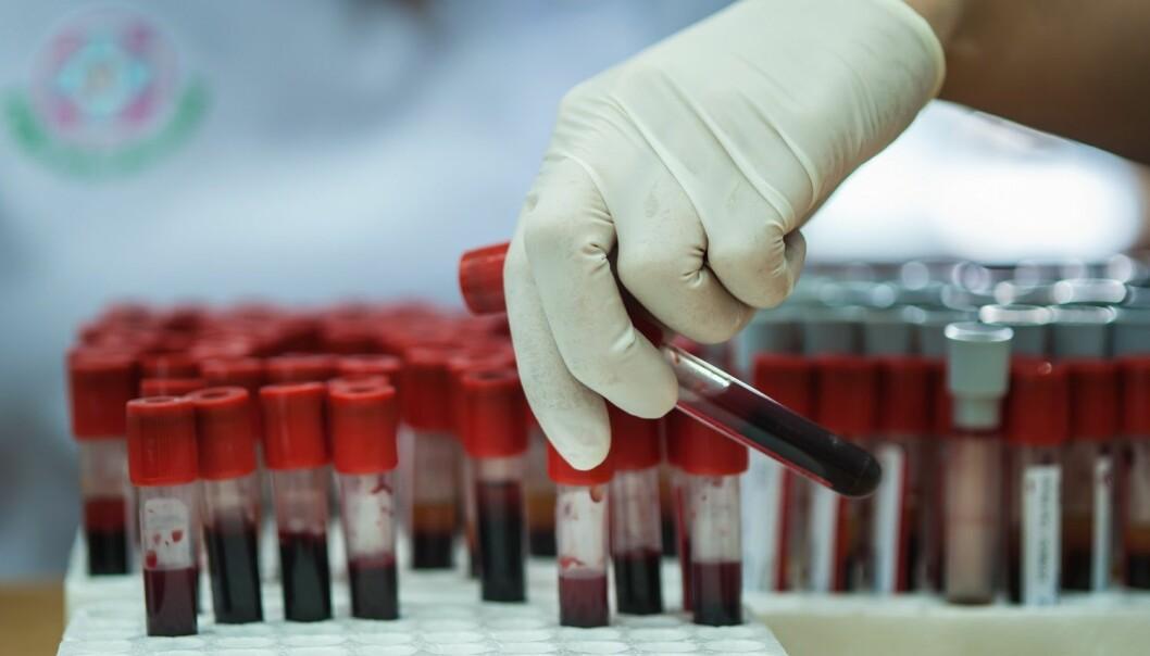 En blodprøve vil være mye billigere og enklere enn dagens PET-skanning av hjernen og ryggmargsprøver som anvendes for å avdekke Alzheimers. (Foto: somsak suwanput, Shutterstock, NTB scanpix)