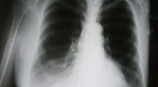 Kols gir høyere kreftrisiko