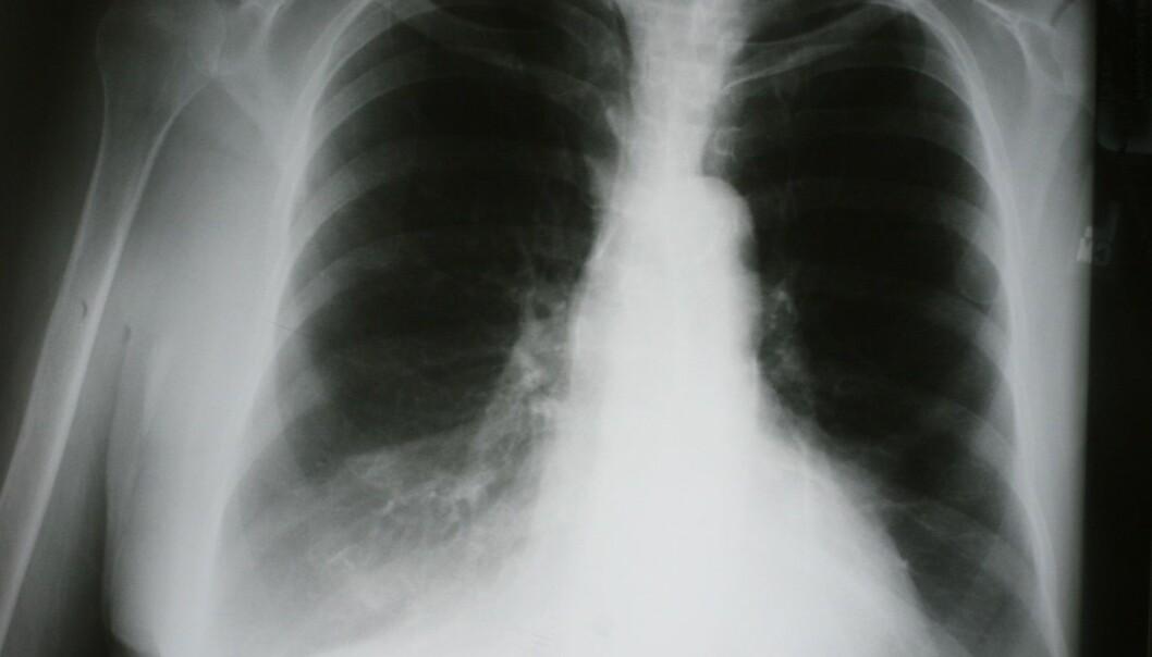 Kols er en sykdom som innebærer kronisk nedsatt lungefunksjon, og skyldes først og fremst røyking, men også for eksempel støv i arbeidsmiljøet, ifølge overlege Per Nafstad ved avdeling for ikke-smittsomme sykdommer ved Folkehelseinstituttet. (Foto: Anthony Ricci, Shutterstock, NTB scanpix)