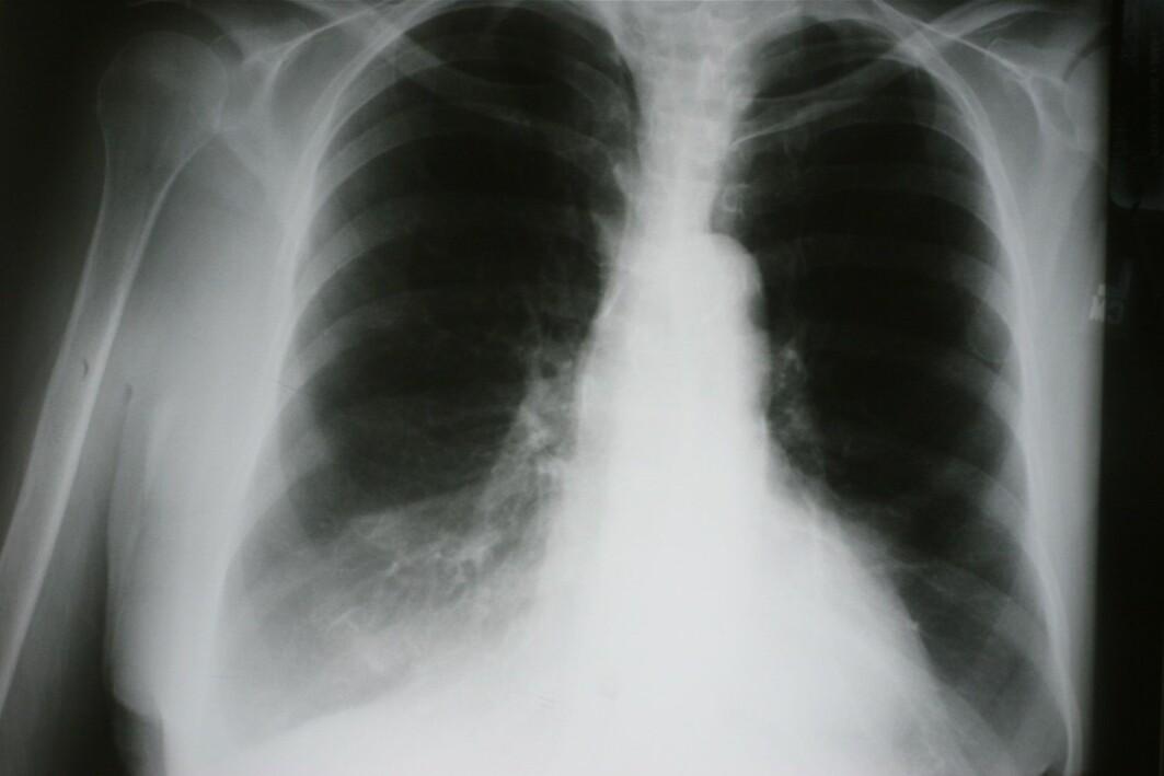 – Vi fant at kolspasienter med emfysem har økt risiko for å få både lungekreft og annen type kreft, sammenlignet med kolspasienter med lite eller intet emfysem, forteller stipendiat Ane Aamli Gagnat.