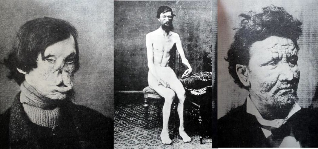 I Norge fortsatte spedalskhet å herje selv på 1900-tallet. Den norske legen Armaur Hansen (1841–1912) oppdaget at spedalskhet skyldes en infeksjon med bakterier. Bildene er fra Armaur Hansens lærebok fra 1895. (Foto lånt ut av Jesper From)