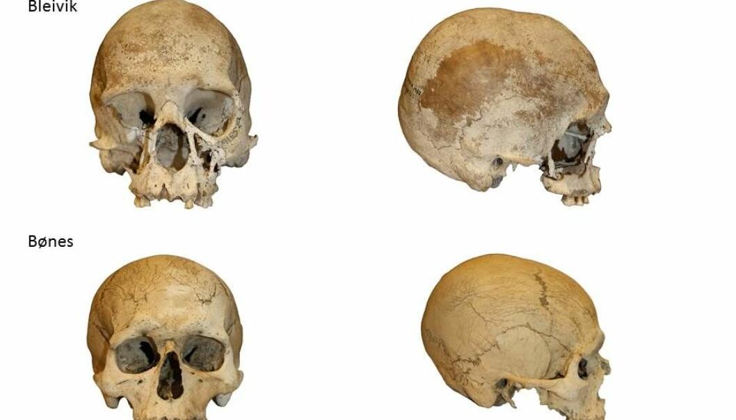 De to hodeskallene funnet i 1952 og 2015 er begge rundt 8500 år gamle. De er fra samme område, muligens samme folkeslag. Men de ser helt forskjellige ut. (Foto: Anne Karin Hufthammer)