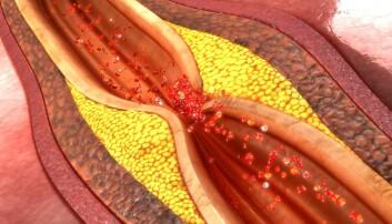Åreforkalkning kan snevre inn blodårene rundt hjertet så mye at blodtilførselen til hjertet stopper. Da får du et hjerteinfarkt.   (Foto: sciencepics/Shutterstock/NTB scanpix)