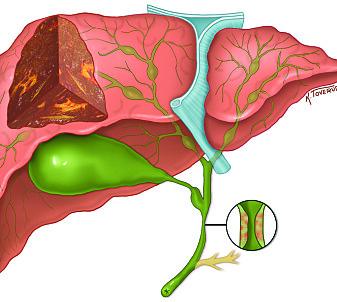 Den sjeldne leversykdommen PSC fører til betennelse i galleveiene. Forskning kan på sikt gjøre at pasientene slipper levertransplantasjon. (Illustrasjon: Kari Toverud)