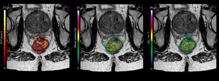 """MR-bildet viser en pasient med en stor svulst i endetarmen som er med på OxyTarget-studien. Bildet viser også hvordan datamodellen kan """"kikke"""" inn i svulsten. Fargene skal vise legene hvordan blant annet blodet og næringen beveger seg inn i svulsten. Utregningene er gjort av Endre Grøvik og Kathrine Røe Redalen. (Foto: (Bilde: OxyTarget (NCT01816607))"""