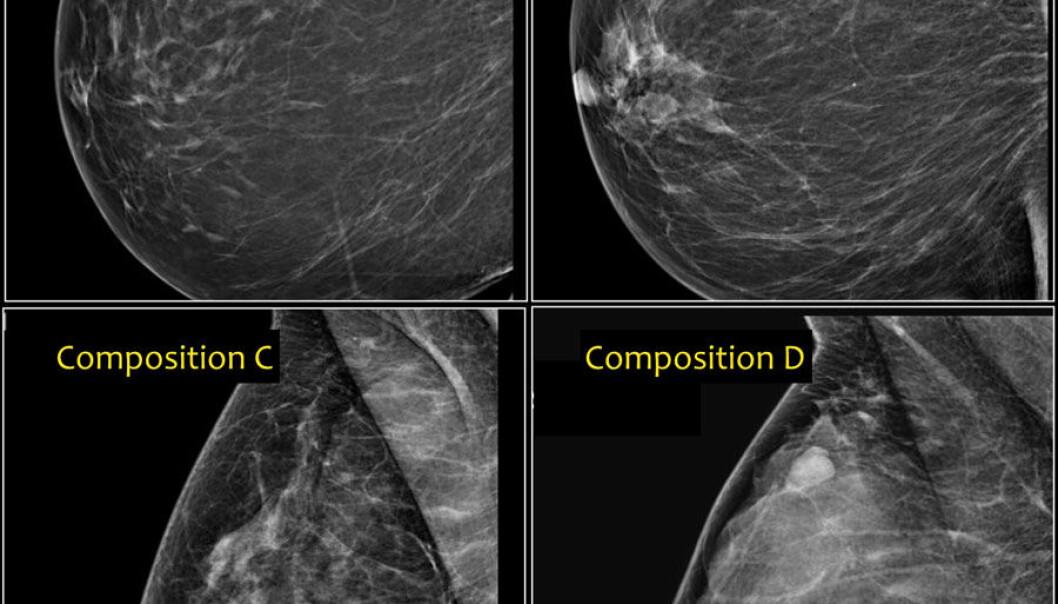 Disse brystene har ulik risiko for kreft. Fra venstre øverst fettrikt bryst som ser mørkt ut på mammografi (A) med lav risiko, via mellomtyper (B og C) til mest kjertelrikt, med stor grad av lyse partier (D). Det nederst til høyre har høyere risiko for kreft.  (Foto: Radiology Assistant)