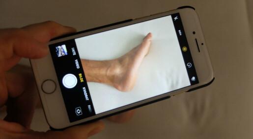 Fotsår kan behandlast via mobilen