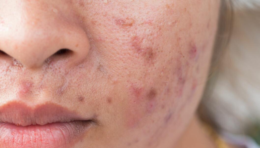 - Porene i huden blir tette av mange forskjellige grunner, og da kan talg i huden hope seg opp. Dette kan føre til en betennelse i talgkjertelen, skriver Sara Sumić. (Illustrasjonsfoto: Shutterstock / NTB scanpix)