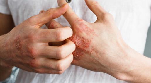 Nye legemidler mot vanskelig atopisk eksem