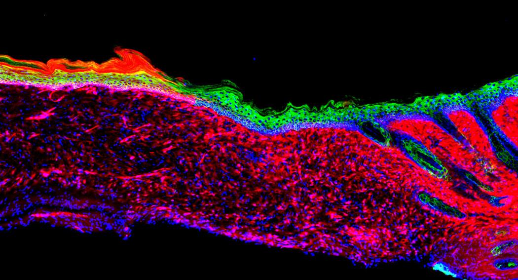 Bildet viser at at det ble dannet frisk hud over et sår etter forskerne konverterte en celletype til en annen. [Illustrasjon: Salk Institute]