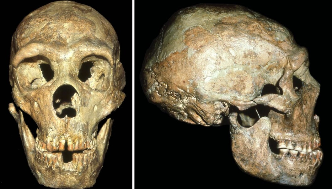 Denne neandertaleren led av mange forskjellige plager.  (Foto: Erik Trinkaus)