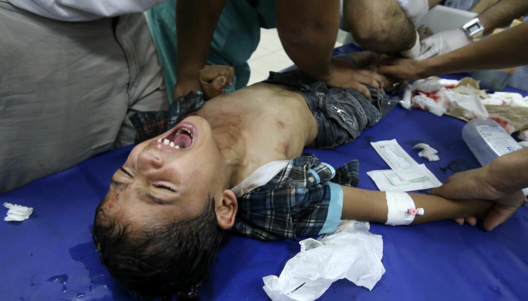Mange barn får ingen smertestillende når de er syke eller har vært utsatt for ulykker. Men denne gutten fikk behandling på sykehus etter et bombeangrep på Gazastripen i 2014. (Foto: Ibraheem Abu Mustafa /Reuters/NTB scanpix)