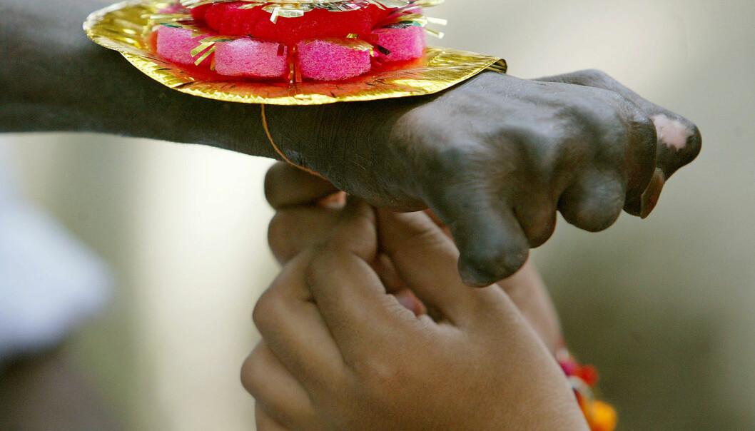 En indisk lepra-syk får en krans rundt hånden av en ung jente. India er et av de landene i verden som har flest lepra-syke. (Foto: Rupak De Chowdhuri/NTB Scanpix)