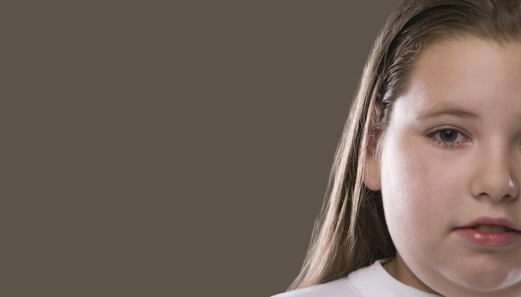 Barn med fedme forblir overvektige etter behandling