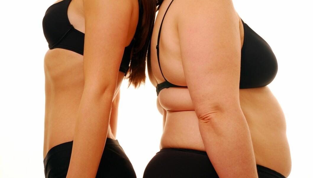Vi ser i slankeprogrammene hvordan kropper som mister vekt, seksualiseres. Går du ned i vekt, blir belønningen din at du blir mer seksuelt attraktiv, sier Camilla Bruun Eriksen. (Foto: Shutterstock / NTB scanpix)