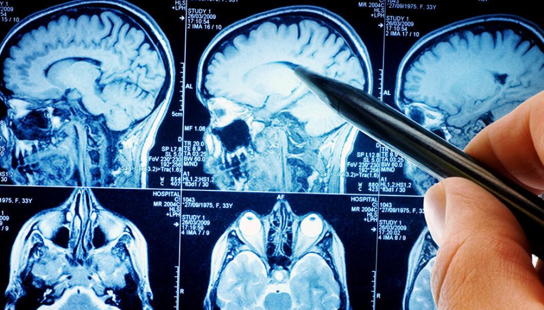 Dette er årsaken: En stor hjerne betyr flere hjerneceller. Og jo flere celler man har, desto flere celledelinger som kan gå galt og skape mutasjoner som fører til kreft. (Illustrasjonsfoto: Shutterstock / NTB scanpix)