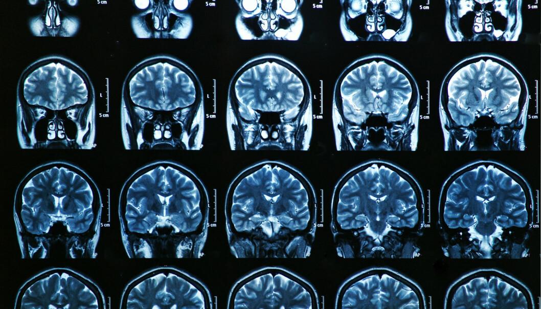 Hva skjer i hjernen når noen får demens? Og hva er det som gjør sykdommen dødelig? (Illustrasjonsfoto: Colourbox)
