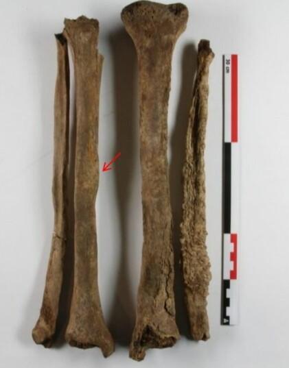 Beinbrudd og lepra: Forandringene i beinvevet er særlig tydelig på venstre legg- og skinnebein. Disse er forårsaket av lepra. Den røde pilen viser et leget beinbrudd. (Foto: NIKU)