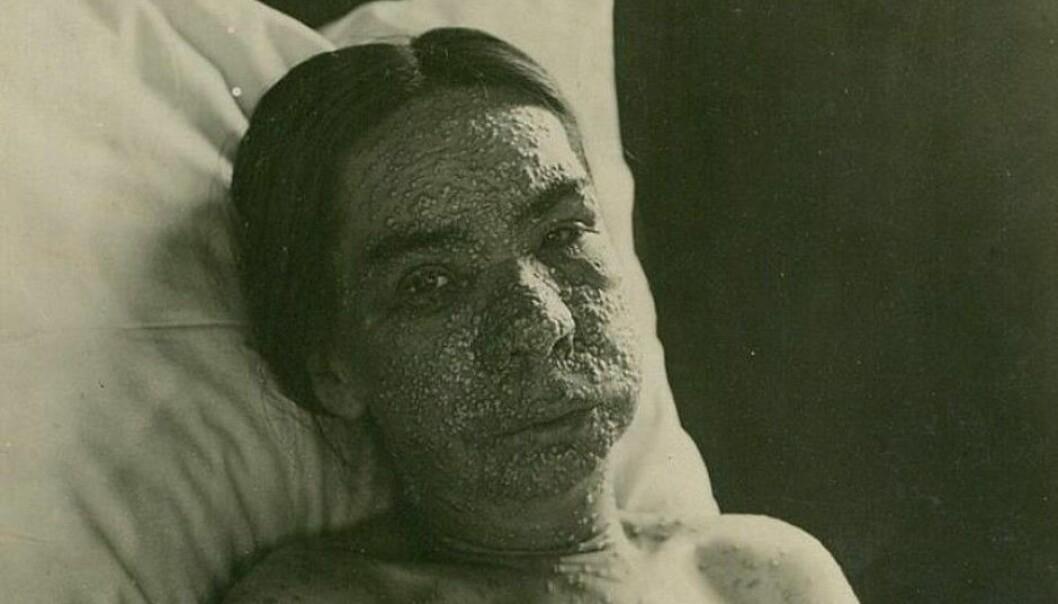 Helt frem til slutten av forrige århundre var kopper en av de mest dødelige og grusomme sykdommer et menneske kunne få.  (Foto: Oslo universitetssykehus Ullevål)