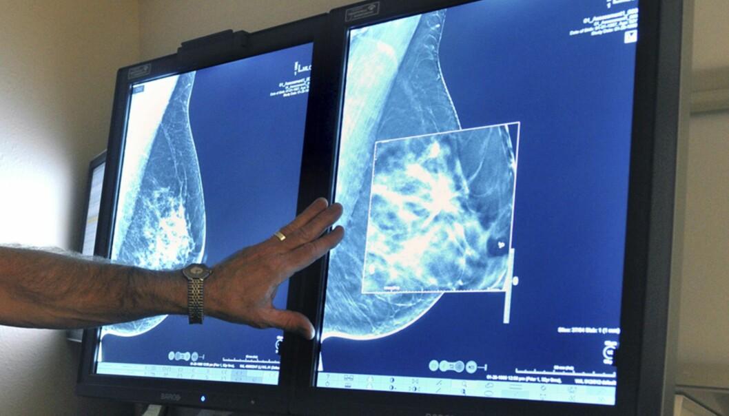 Tomosyntese kan vise bryst i tre dimensjoner og oppdage flere kreftsvulster enn dagens mammografi. (Foto:Torin Halsey/Times Record News via AP, NTB Scanpix)